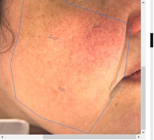 Visioface Full Face Skin Analysis