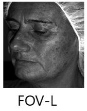 FOV- Large