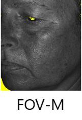FOV-M
